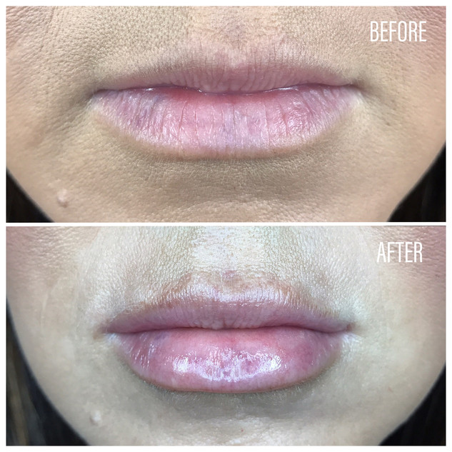 Before-After(25).jpg