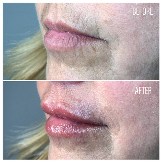 Before-After(23).jpg