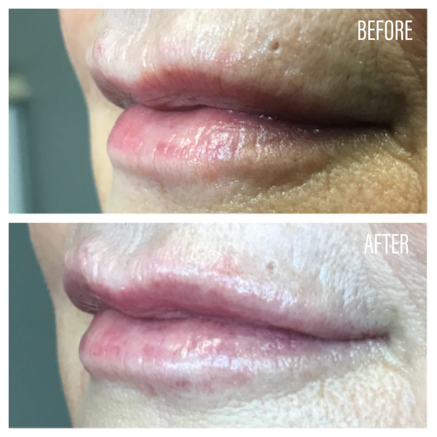 Before-After(12).jpg