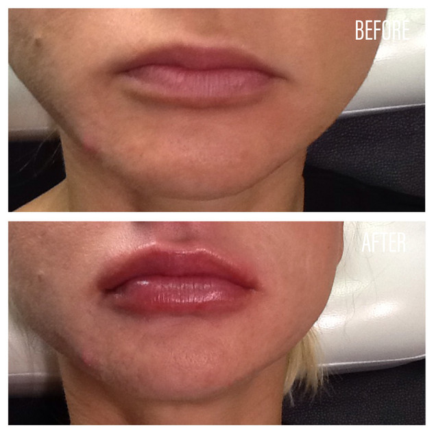 Before-After(17).jpg