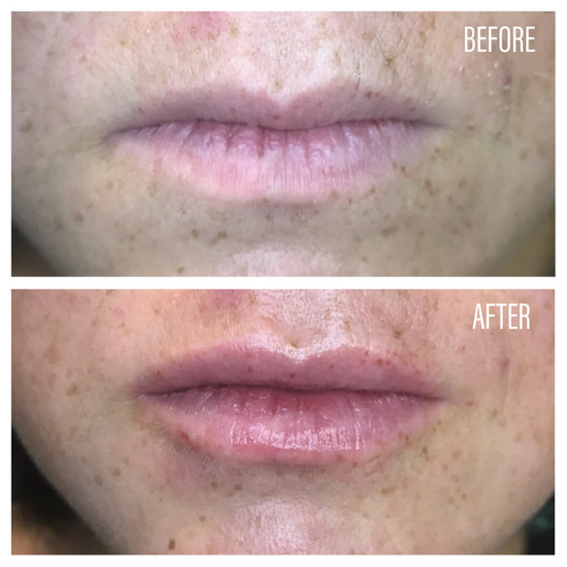 Before-After(16).jpg