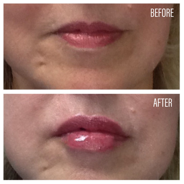 Before-After(18).jpg