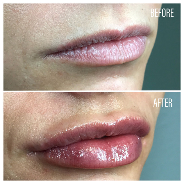 Before-After(14).jpg