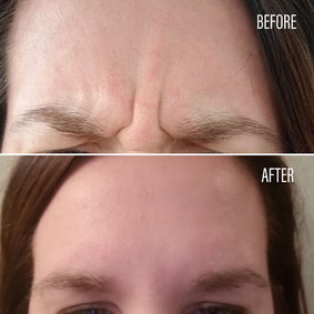 Before-After(6).jpg