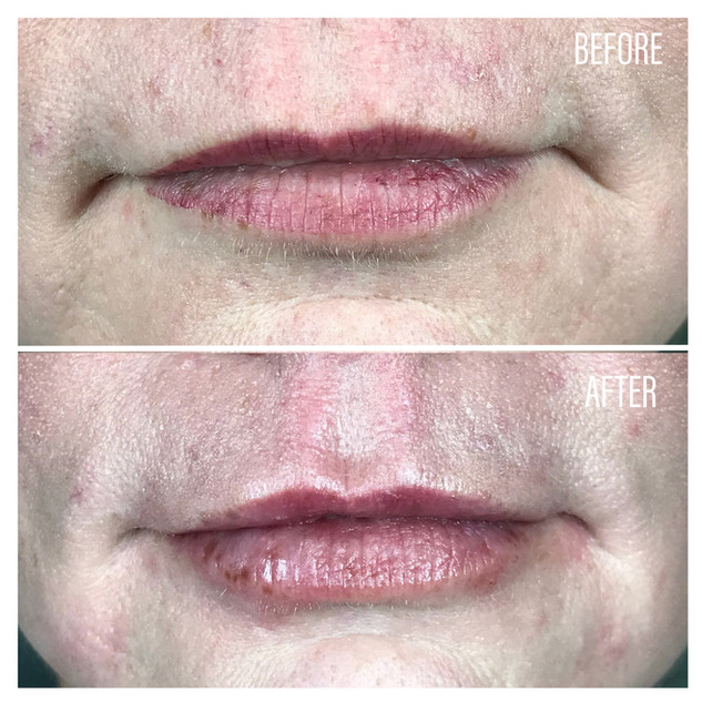 Before-After(19).jpg