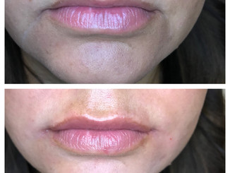 Before-After(2)notext.jpg