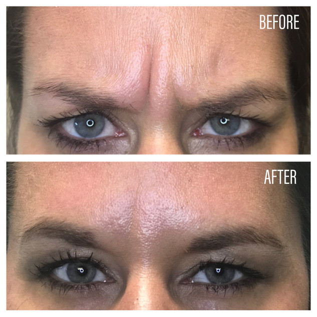 Before-After(31).jpg
