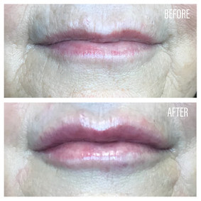 Before-After(11).jpg