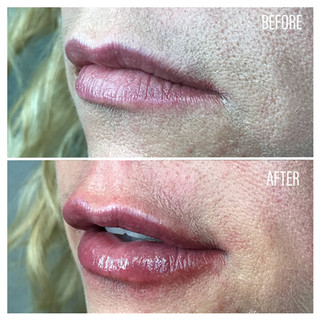 Before-After(20).jpg