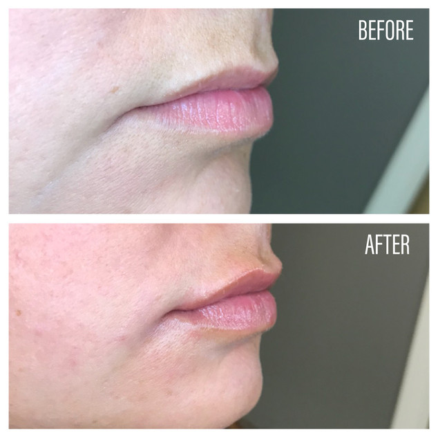 Before-After(15).jpg