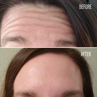 Before-After(5).jpg