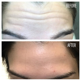 Before-After(30).jpg