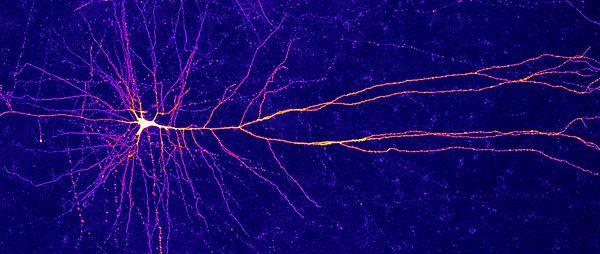 Neuron_2880x1220_Lede_HPA.jpg