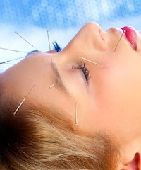 Acupuncture is effective for improving sleep quality and emotional issues