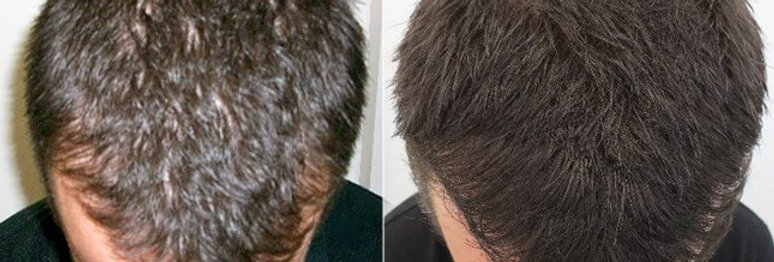 Trademarked Hair Regrowth Products ready to market - Gold Coast