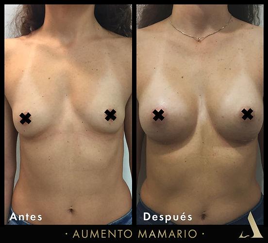 aumento de senos - ciudad de méxico - mamoplastia aumento