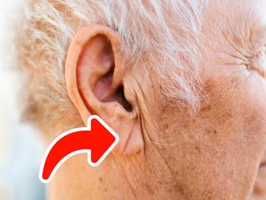 Un pliege en la oreja se asocia con enfermedad coronaria