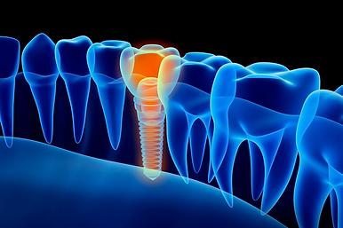 implantologia_3