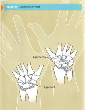 Wrist Sprains