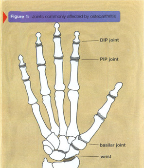 Osteoarthritis of the Hand