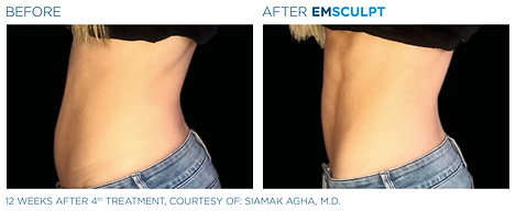 Emsculpt_PIC_Ba-card-female-abdomen-096_