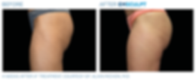 Emsculpt_PIC_Ba-card-female-buttock-045_