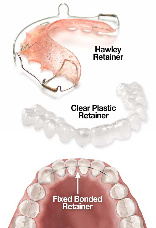 Types of retainers at Top Smile Orthodontics