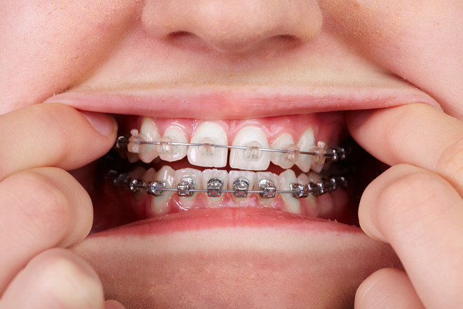 Clear Braces vs. Metal Braces.