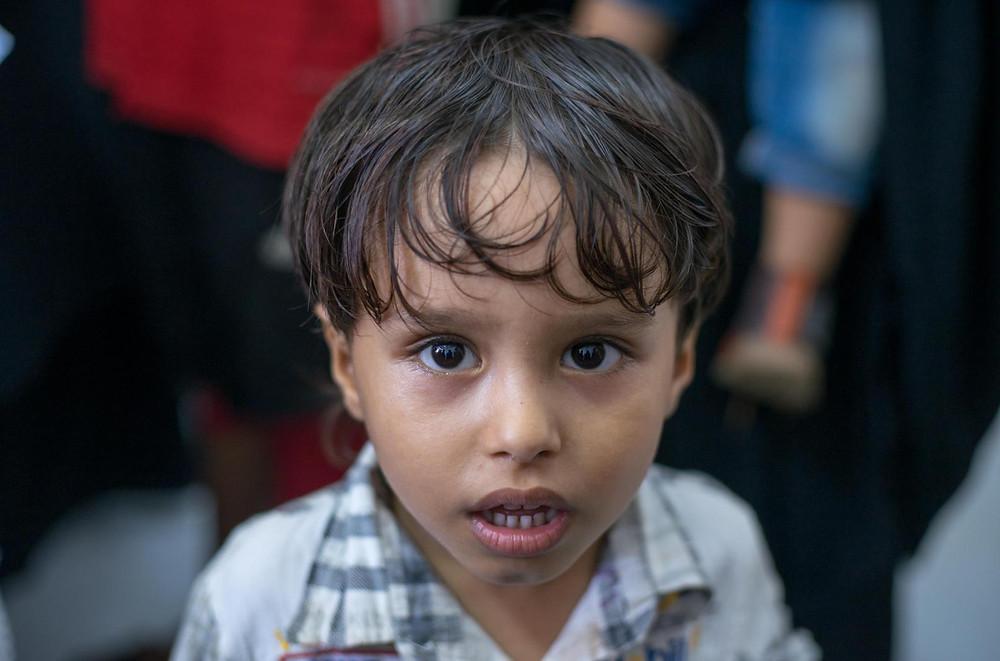 A Yemeni child (Photo Credit: UNICEF)