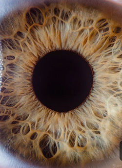 Iridology analysis assessment online service in a few easy steps from the comfort of your home
