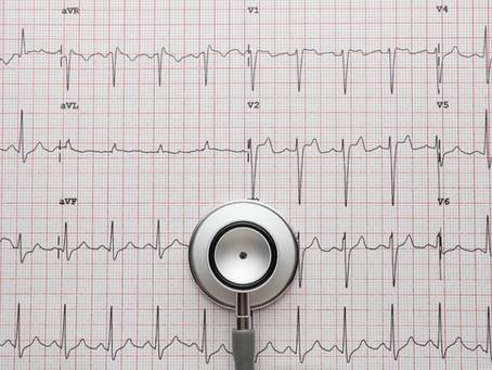 Your atrial fibrillation ablation