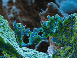 Como identificar isolados de bactérias e fungos rapidamente e com acurácia