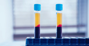 PREVENTING DRY SOCKET WITH PLATELET-RICH PLASMA