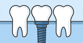 4 BENEFITS OF DENTAL IMPLANTS FOR TOOTH REPLACEMENT