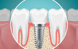 TAKING CARE OF YOUR DENTAL IMPLANTS FOLLOWING SURGERY