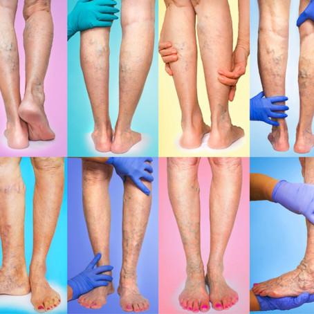 Quais são as opções de tratamento para minhas varizes nas pernas?