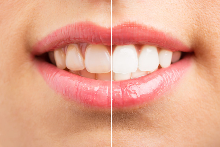 Professional Teeth Whitening Union Count