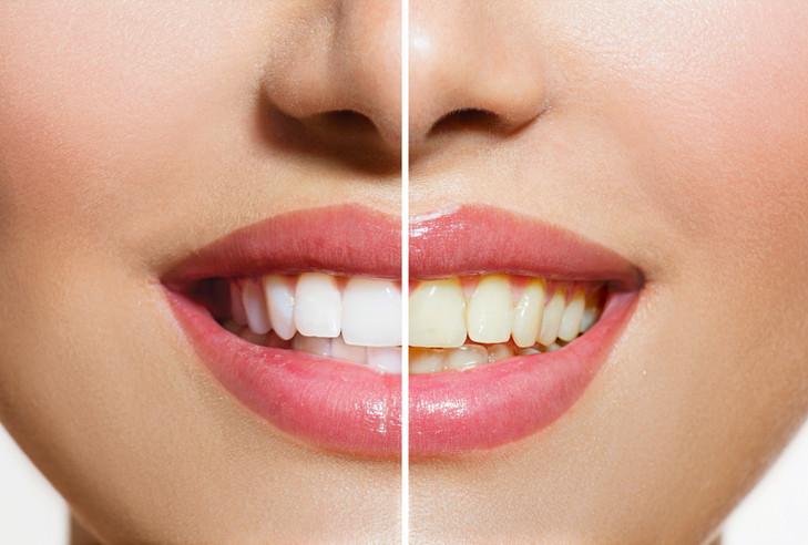 Professional Teeth Whitening Dentista.jp