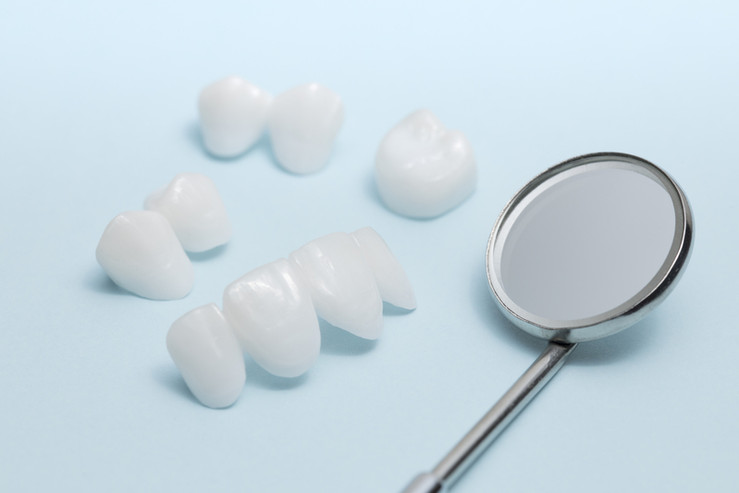 Dentista en Newark Veneers.jpg