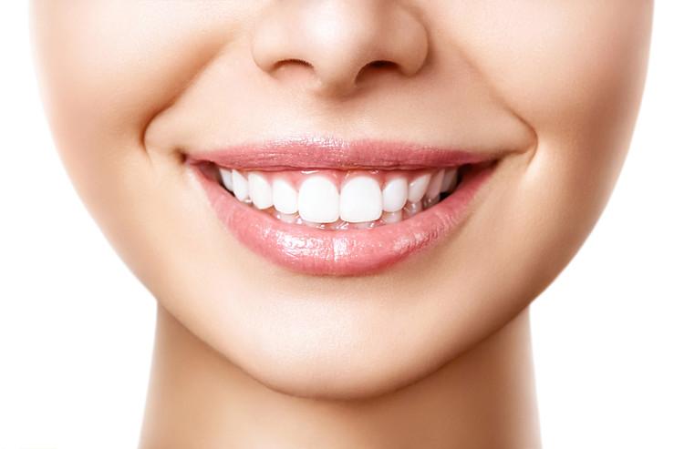 Professional Teeth Whitening.jpg