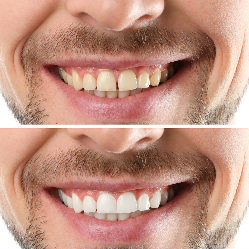 Professional Teeth Whitening in Saddle B