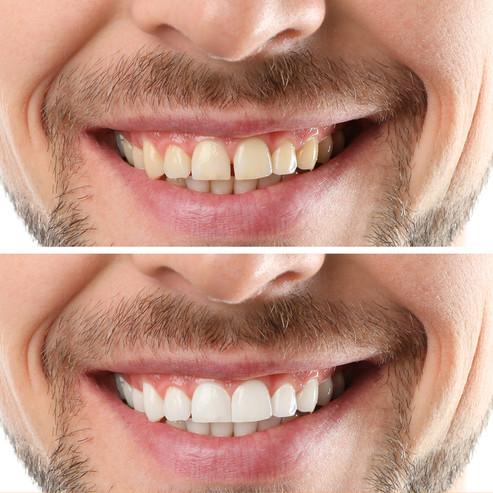 Professional Teeth Whitening in Saddle B