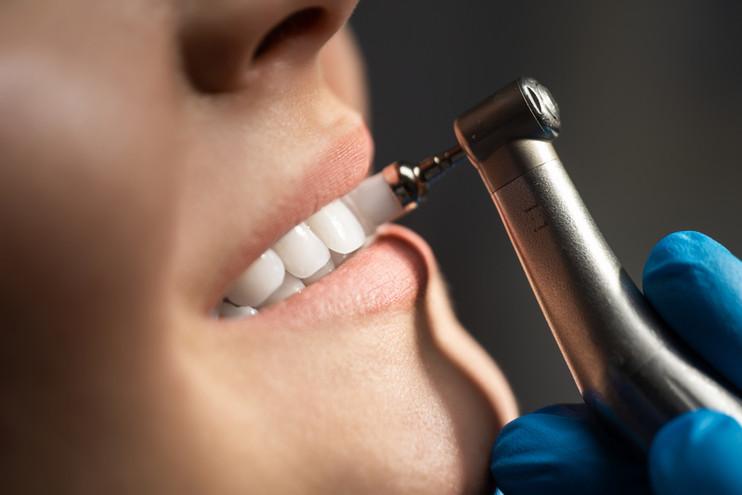 Dental Cleaning North Bergen.jpg