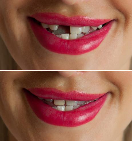 Single Dental Implant en Union City.jpg