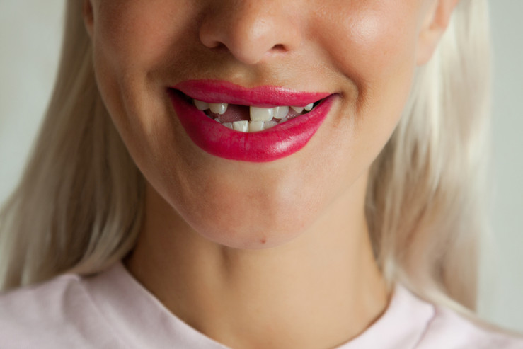 Single Dental Implant en Newark MySmile