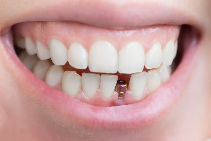 Single Dental Implant in Saddle Brook.jp