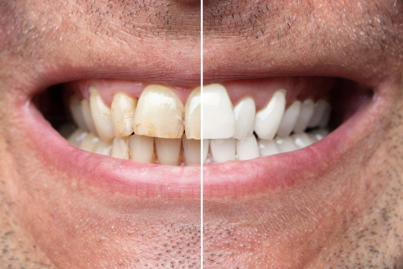 Professional Teeth Whitening in Union Ci