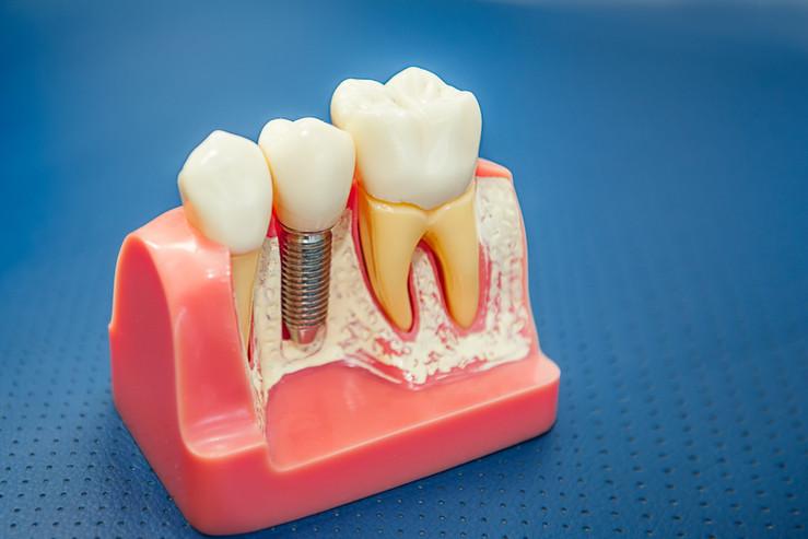 Single Dental Implant MySmiledental.jpg