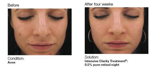 acne 2.jpg