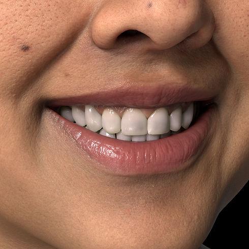 Detail_Teeth01.jpg